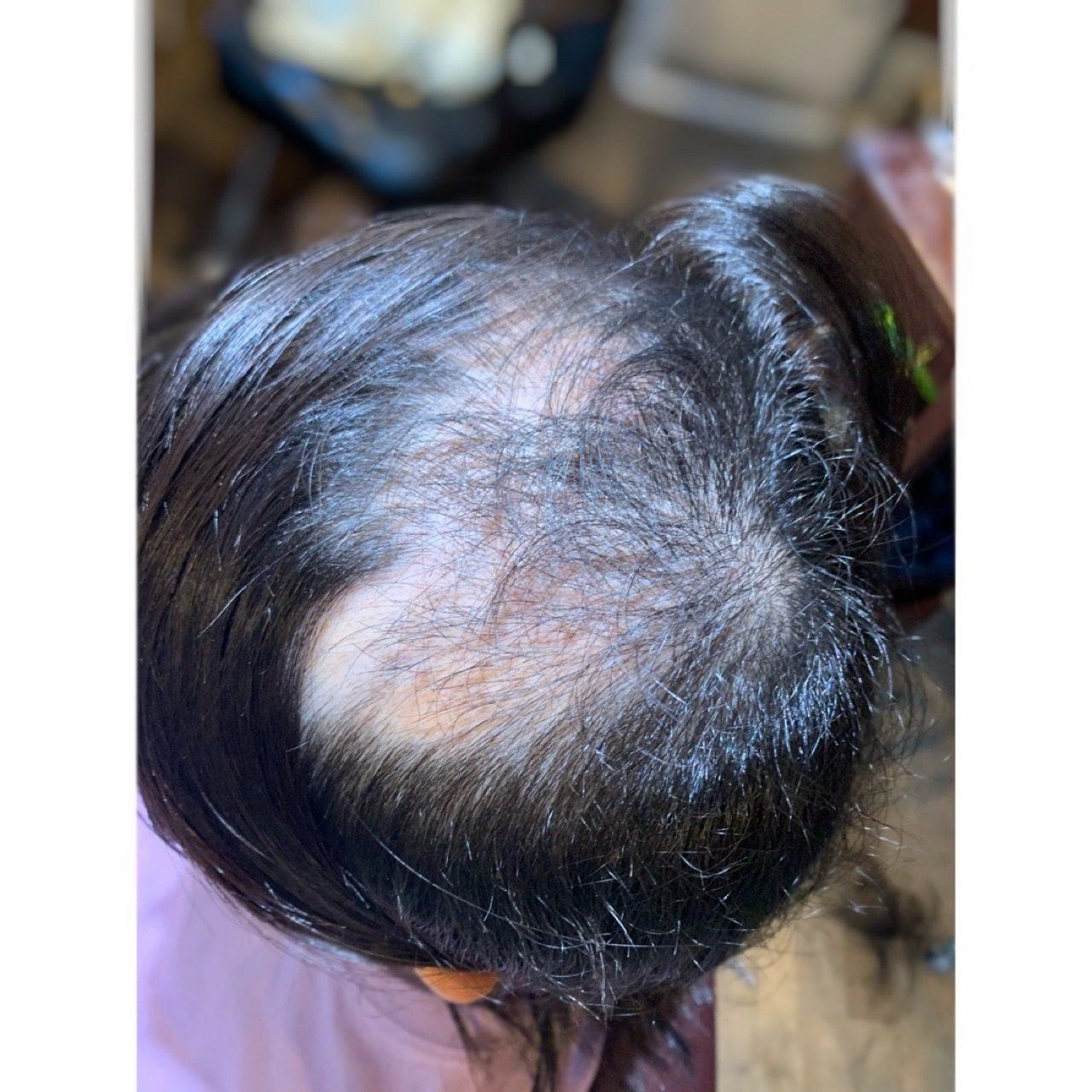 脱毛 症 円形 円形脱毛症とは?症状・原因・治療・病院の診療科目